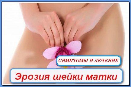 1380457567_eroziya-sheyki-matki