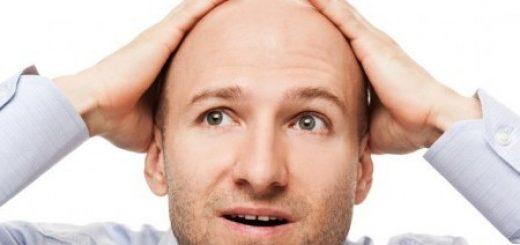 Что делать мужчинам при выпадении волос