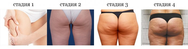 woman_cellulitis_stage_01