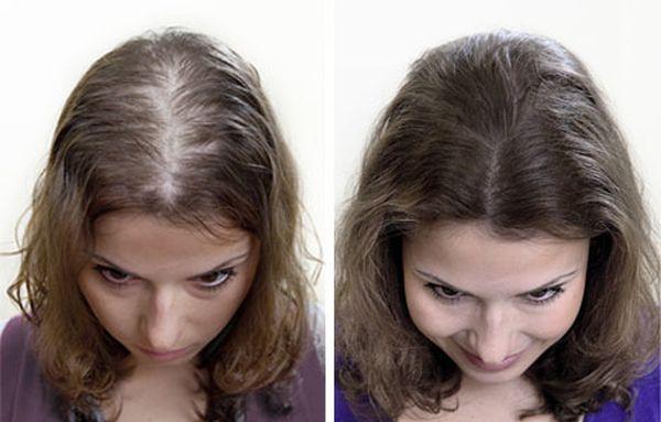 Лечение облысения у женщин миноксидилом