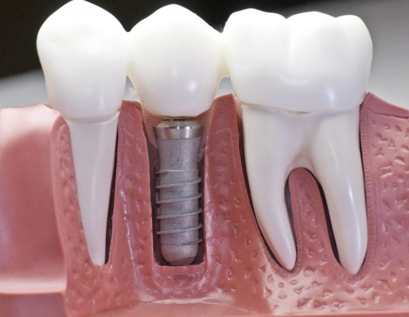 Что нужно знать о несъемном протезировании