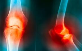 Ревматоидный артрит: чем опасен и как лечить
