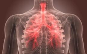 Бронхит: симптомы, лечение и профилактика