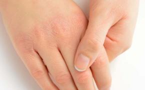 Сухость рук: причины и решения