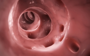 Дивертикулез: симптомы и профилактика